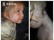 两岁女童全身红点被误诊水痘实为手足口病险要命