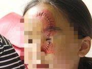 10岁女孩惨遭毁容,只因爸爸……