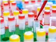 你未来十年是否面临死亡风险? 德国科学家:通过血检可预测