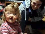 俄罗斯一家托儿所称残疾女童长相吓人拒绝其入园