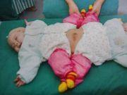 全国首例!坐骨连体女婴分离后,双双成活了!
