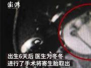 男婴腹中藏寄生胎:已发育9周肢体初见雏形