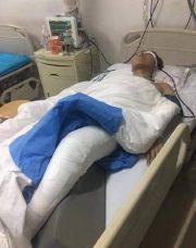沈阳大学学生因奖学金被捅伤,照片上看伤口触目