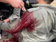 令人发指!香港多名暴徒以利器刺杀港警过程曝光,鲜血淋淋