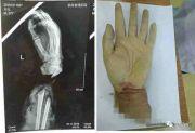是个狠人!22岁女子为骗800万保险金,锯断了自己的手
