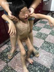 2岁男童被饿死尸体沾满排泄物 生母及男友遭起诉