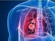 新型冠状病毒感染的肺炎预防指南 口罩能防治新型肺炎吗