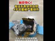 触目惊心!电话手表自燃4岁女童手背被烧伤