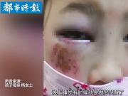 8岁小女生算错题遭老师殴打,惨不忍睹!