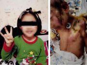 抚顺 6 岁女童遭亲妈虐待案明日开庭 父亲:孩子心理辅导一年仍会做噩梦 , 望严惩凶手